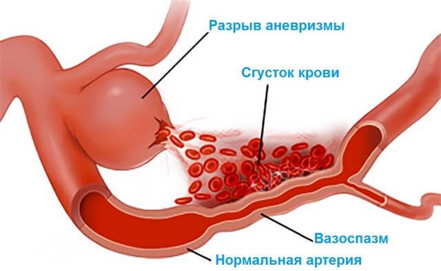 Вазоспазм